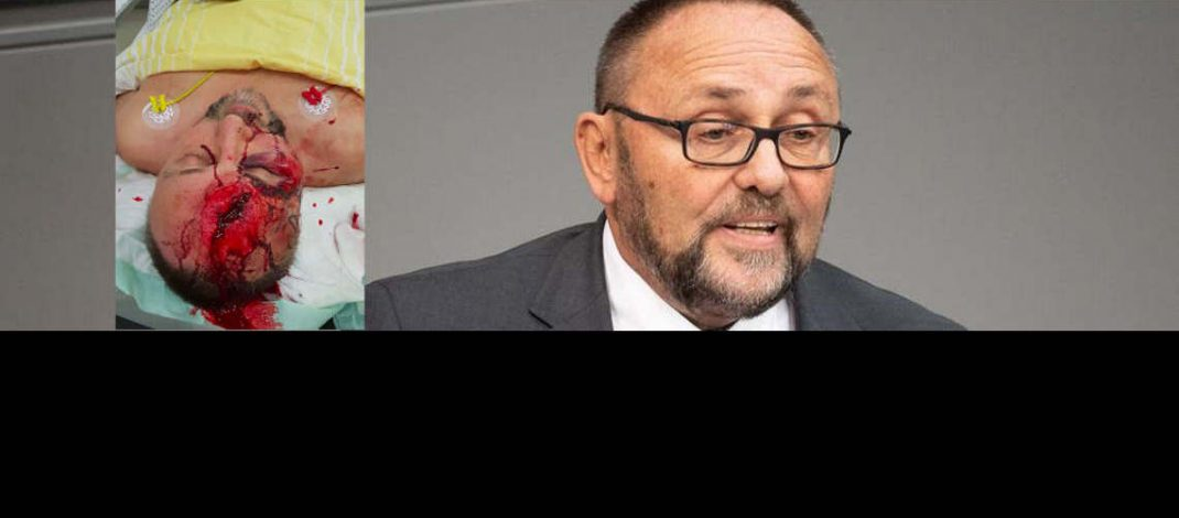 Angriff auf AfD-Bundestagsabgeordneten Frank Magnitz